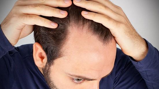 Caduta capelli nell'uomo