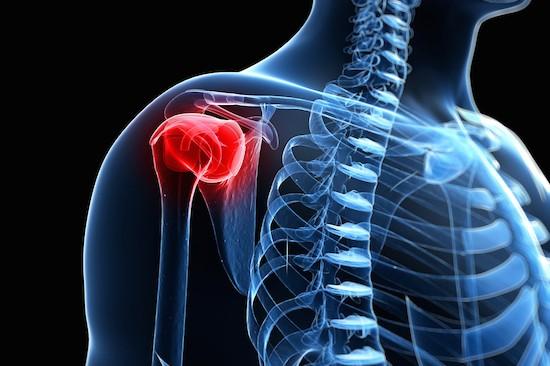 Dolore all'articolazione della spalla