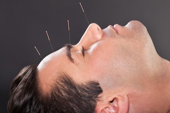 Uomo sottoposto ad agopuntura