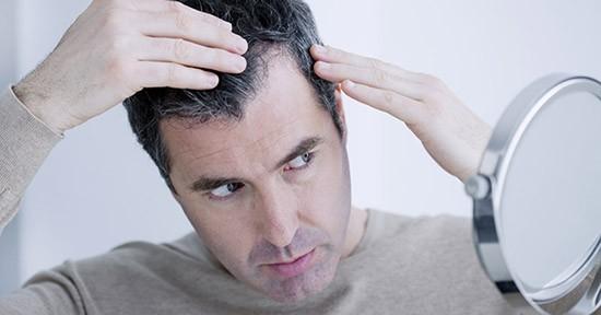 Uomo e perdita di capelli