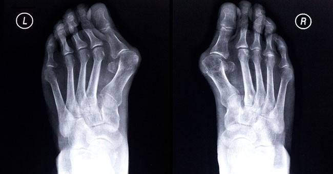Raccomandazioni su trattamento di un fungo di unghie e piede
