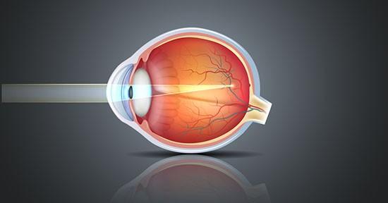 Occhio miope