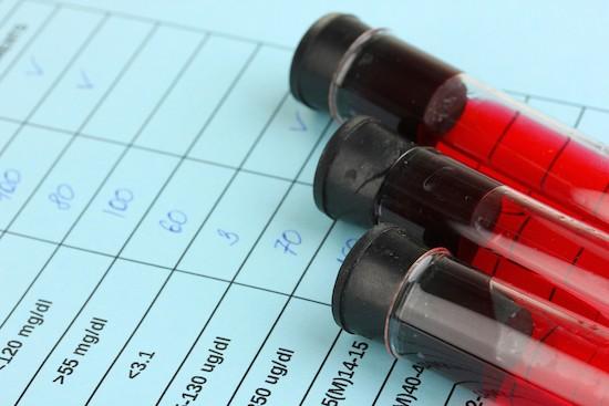 Analisi del sangue, scheda laboratorio