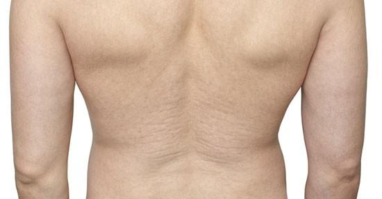 Smagliature schiena