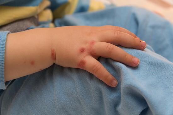 Bambino con eczema alla mano