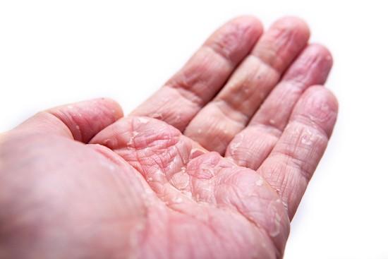 Dermatite palmo della mano