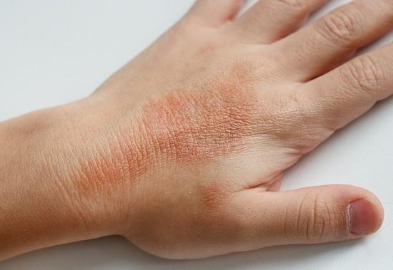 Eczema alla mano