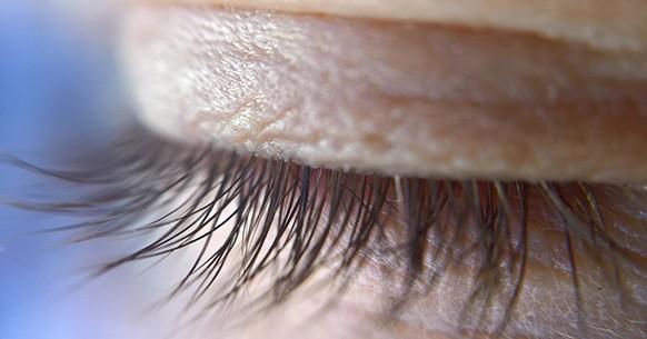 Occhio palpebra