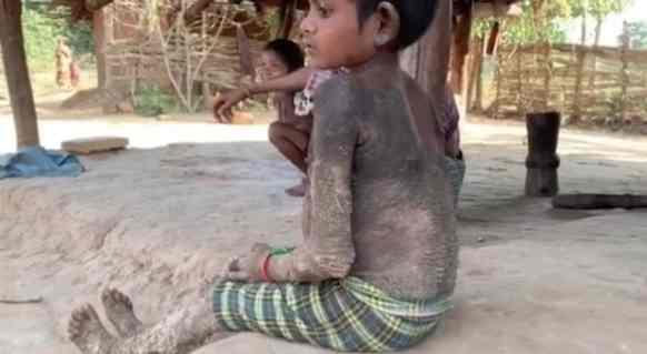 Ittiosi: cosa sta succedendo a Rajeshwari