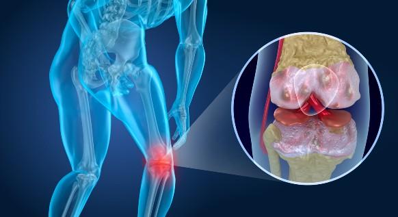 Acido ialuronico e ginocchio: trattamenti