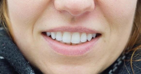 Denti e gengive