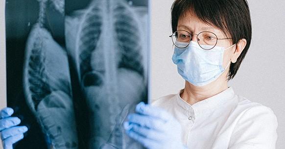 Osteopenia, raggi X