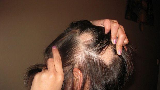 Le cure naturali per l'alopecia nelle donne - Benessereblog