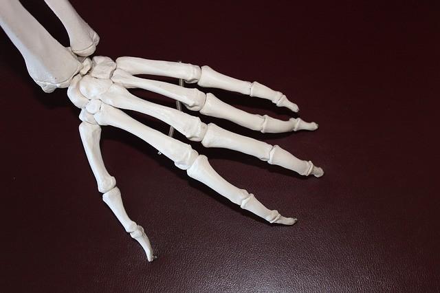 I falsi miti sull'artrite da sfatare