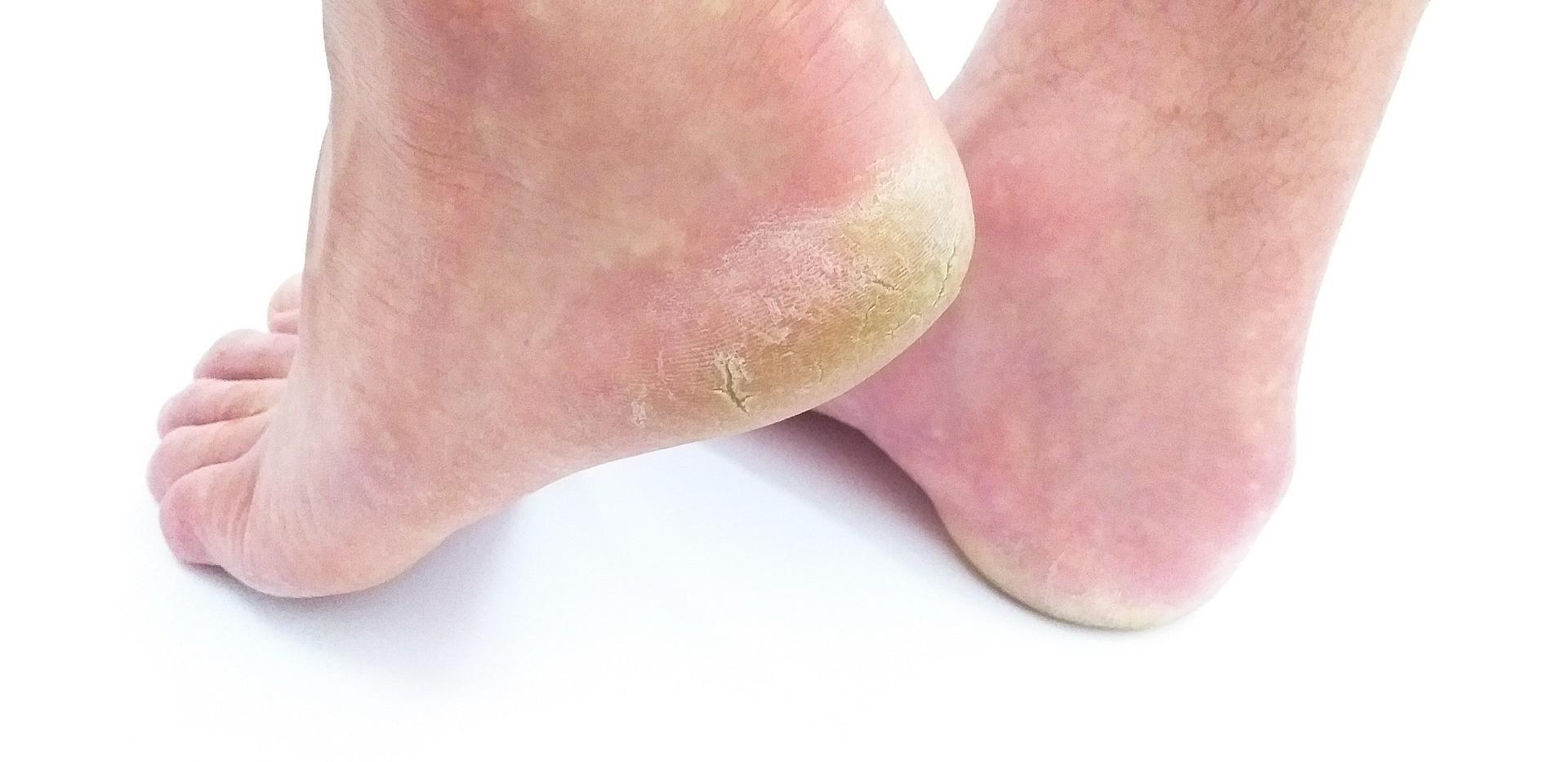 Micosi della pelle
