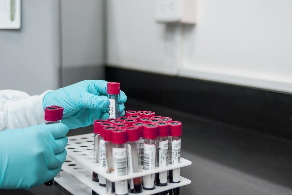 Sindrome da anticorpi antifosfolipidi: test