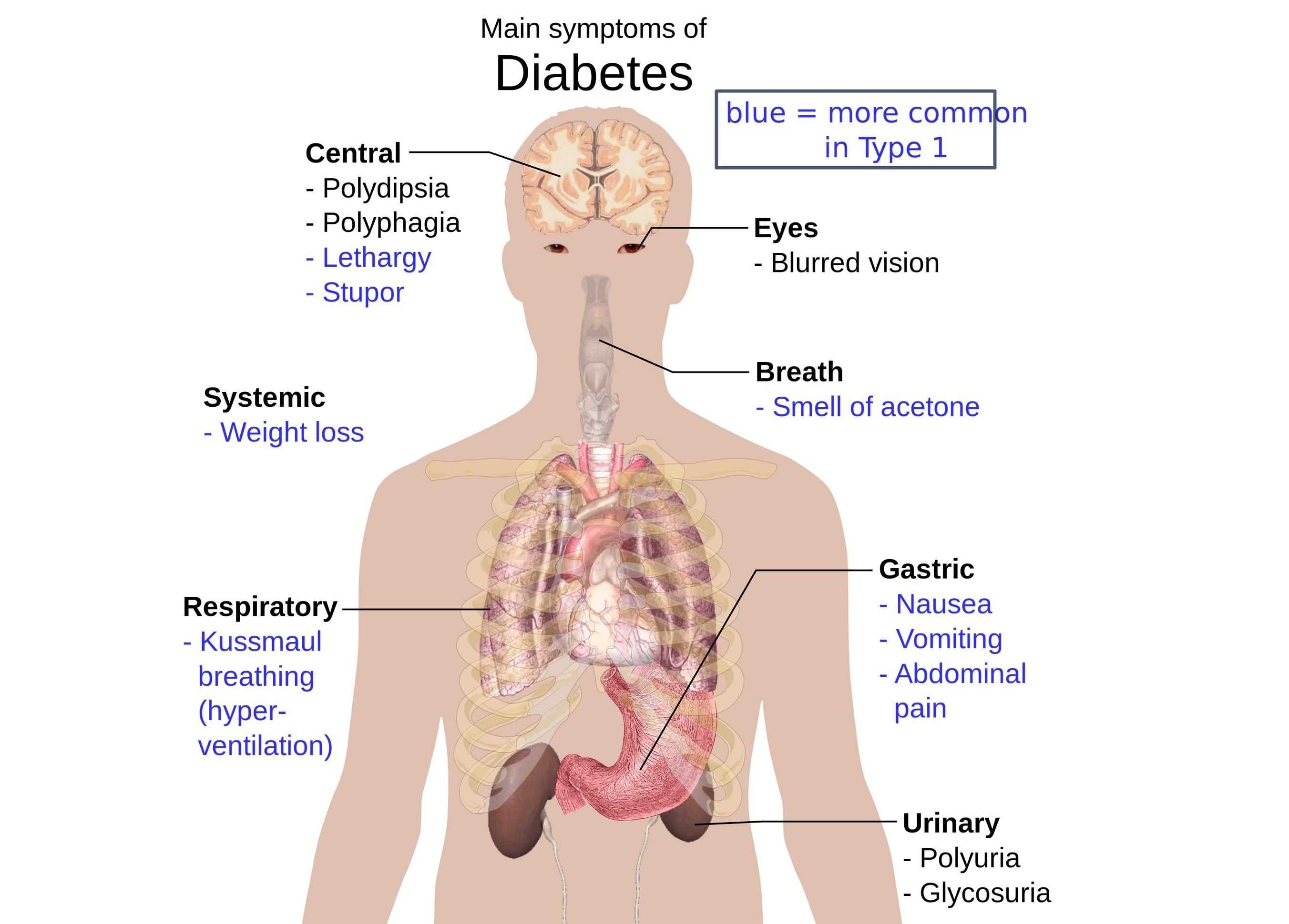 Valori diabete
